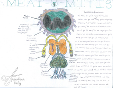 Meatomitis_2